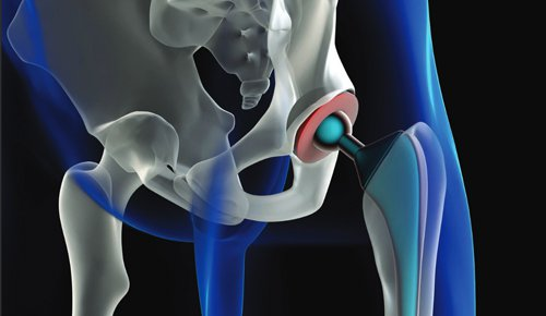 New Total Hip Replacement Precautions!